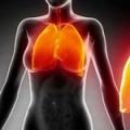 Дренажний масаж при пневмонії і бронхіті
