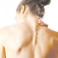 Защемлення нерва в грудному відділі